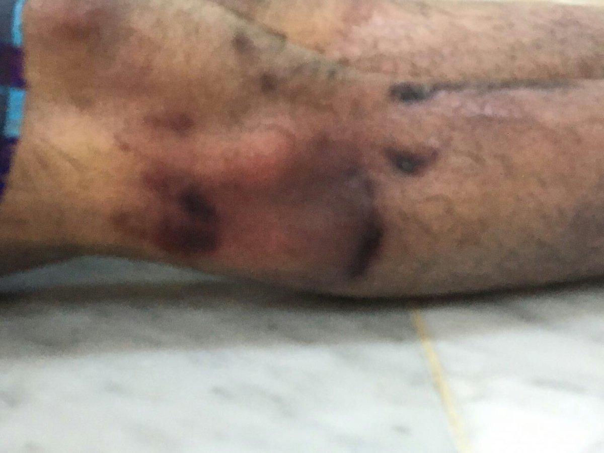 آثار التعذيب على جسد الشهيد مكي العريض